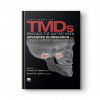 TREATMENT OF TMD_1